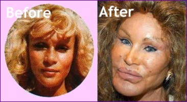 Jocelyn Wildenstein before and after pictures of her cosmetic surgery