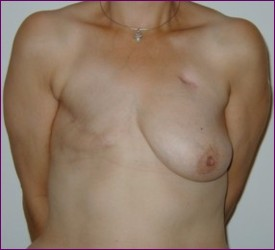 breast reduction transsexuals